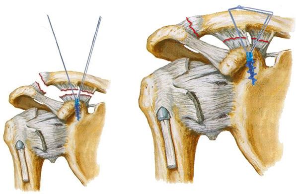 Перечень сеансов лечения в зависимости от травматологической и ортопедической патологии