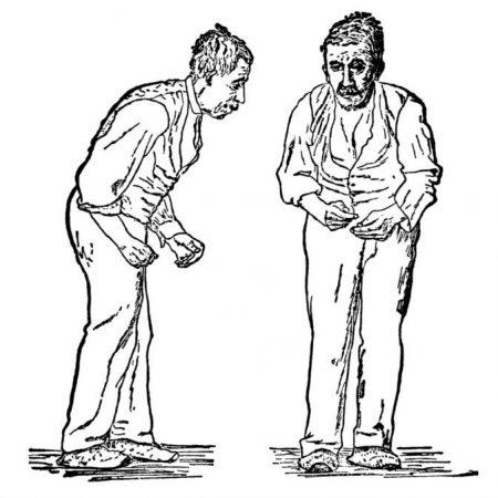 Метод лечения болезни Паркинсона